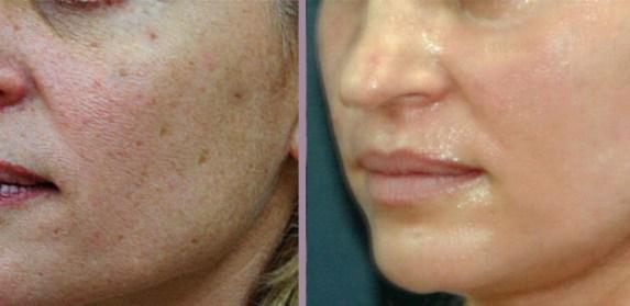 Лазерное очищение кожи – удаление старых клеток
