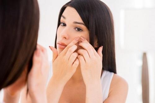 Эксперты рассказали, как правильно очищать кожу от весенних прыщей