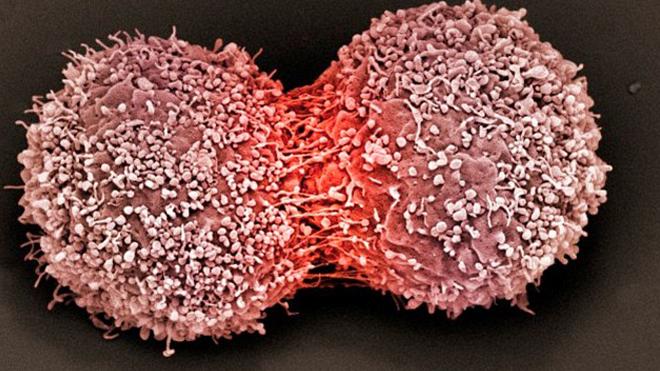 Эксперты объяснили, что может предотвратить рост рака молочной железы