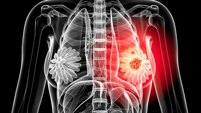 Стало известно о тесте, который сможет предсказать 4 вида рака