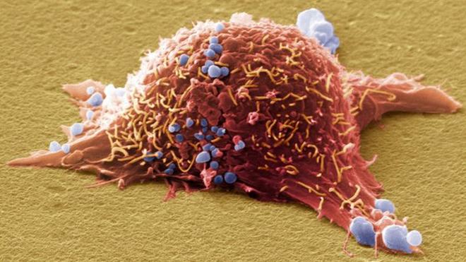 Обнаружен новый механизм борьбы с меланомой