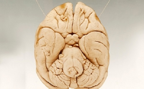 Найдена зона мозга, которая отвечает за уникальность человеческого разума