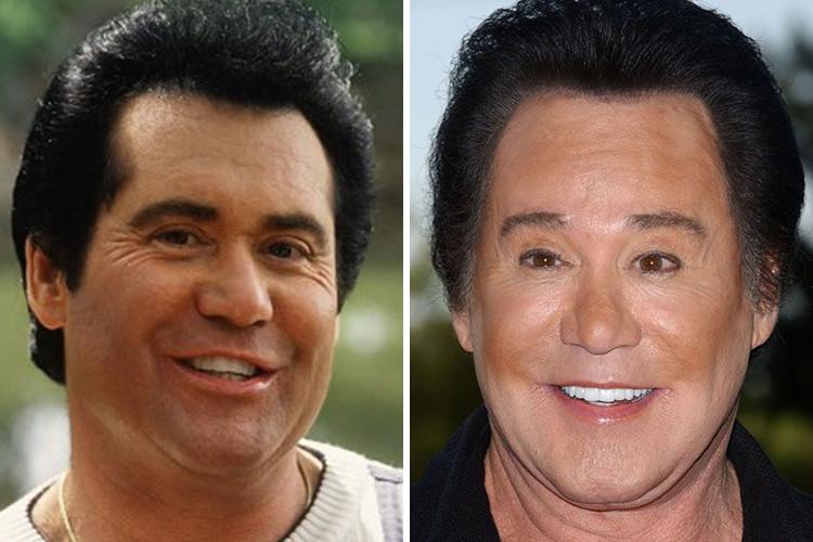 Страшно красивые: 40 фото знаменитостей до и после пластических операций
